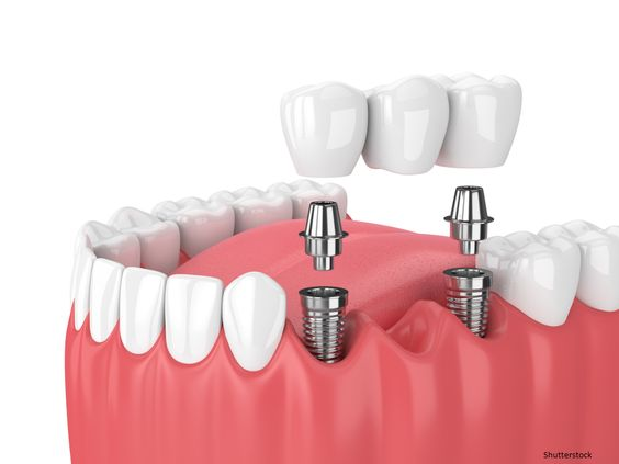Basic Tips to Take Care of Dental Crowns | Rejuvie Dental