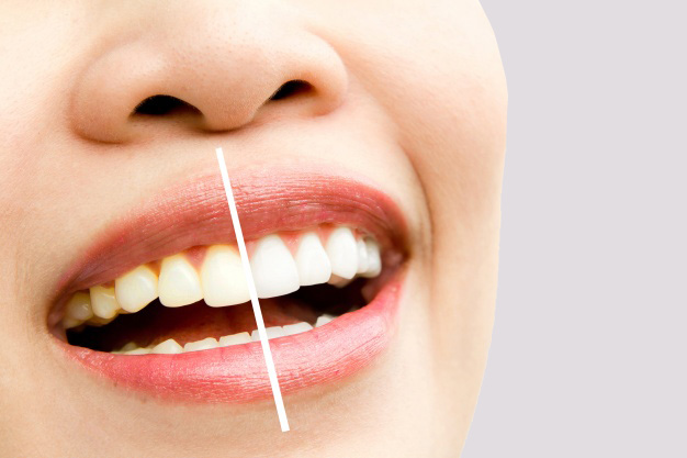 Whitening Teeth Rejuvie Dental | Rejuvie Dental Bali